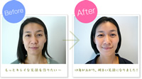 Before&After(事例紹介)
